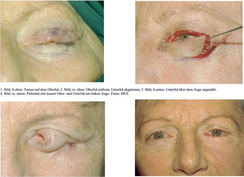 Spezielle Tumorchirurgie: Wie ein krankes Oberlid rekonstruiert wird ...